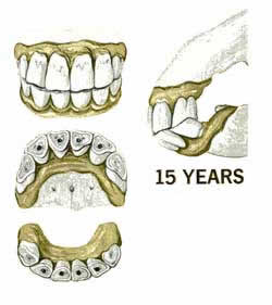 The fifteen year old horses teeth & horses age